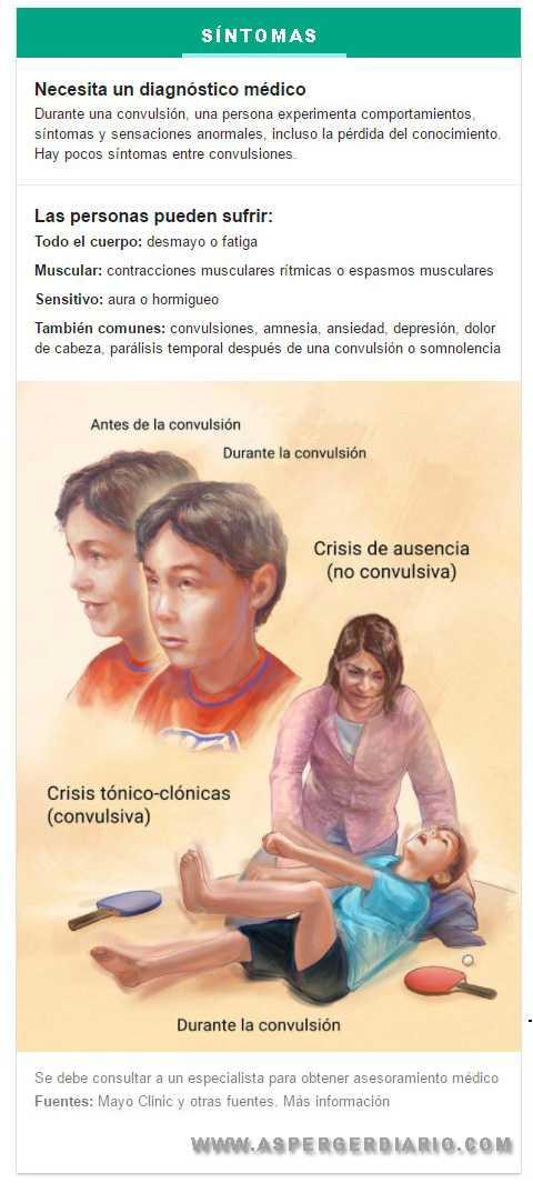 epilepsia sintomas